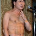高須クリニック院長の高須克弥
